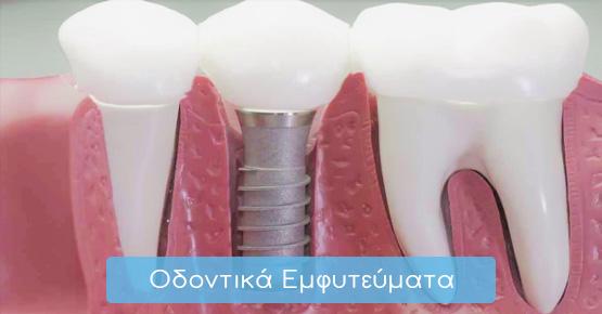 odontika-emfitevmata-home