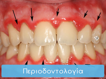 periodontologia-home